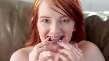 Brace Faced Krystal Orchid in Hefty Bracket Load 15
